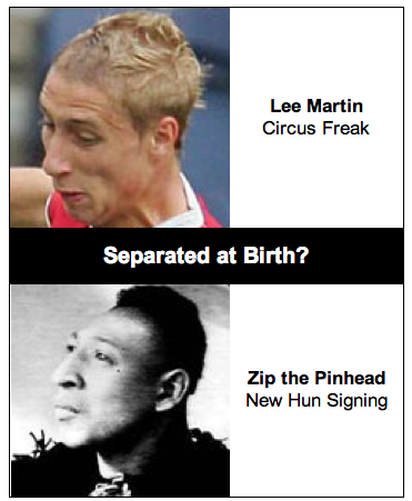 Lee Martin & Zip the Pinhead : Separated at Birth